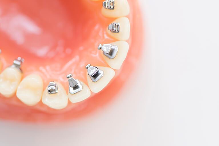 歯の裏側から歯並びを整える、目立たない矯正治療法